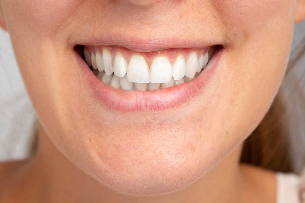 Cómo prevenir la erosión de tu esmalte dental
